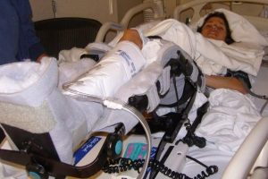 10 Years Since Hip Surgery, Here's What I've Learned.